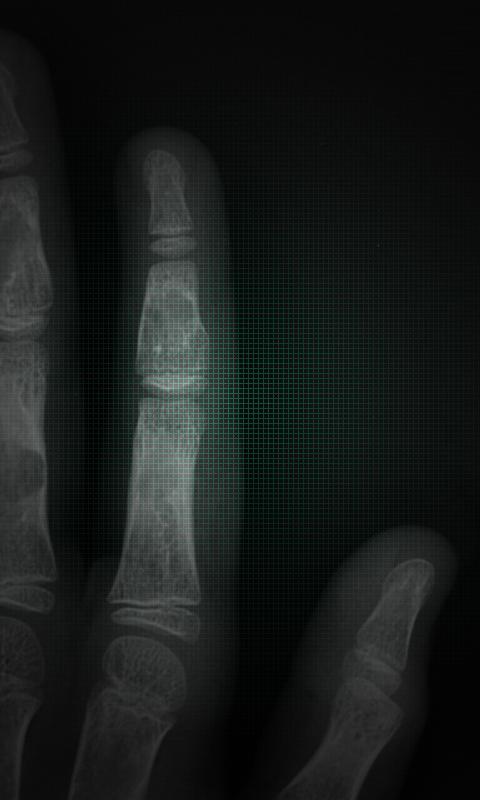 【免費體育競技App】X-Ray Scanner-APP點子